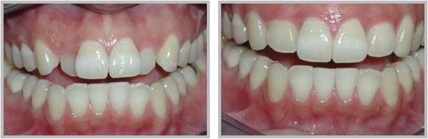Smile Gallery   Holland MI Dentists   Lakeshore Dentistry