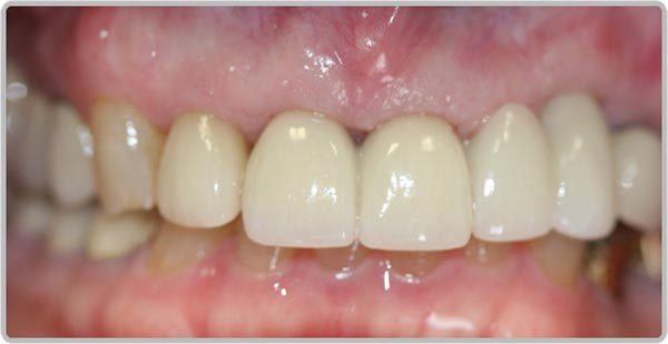 Smile Gallery | Holland MI Dentists | Lakeshore Dentistry